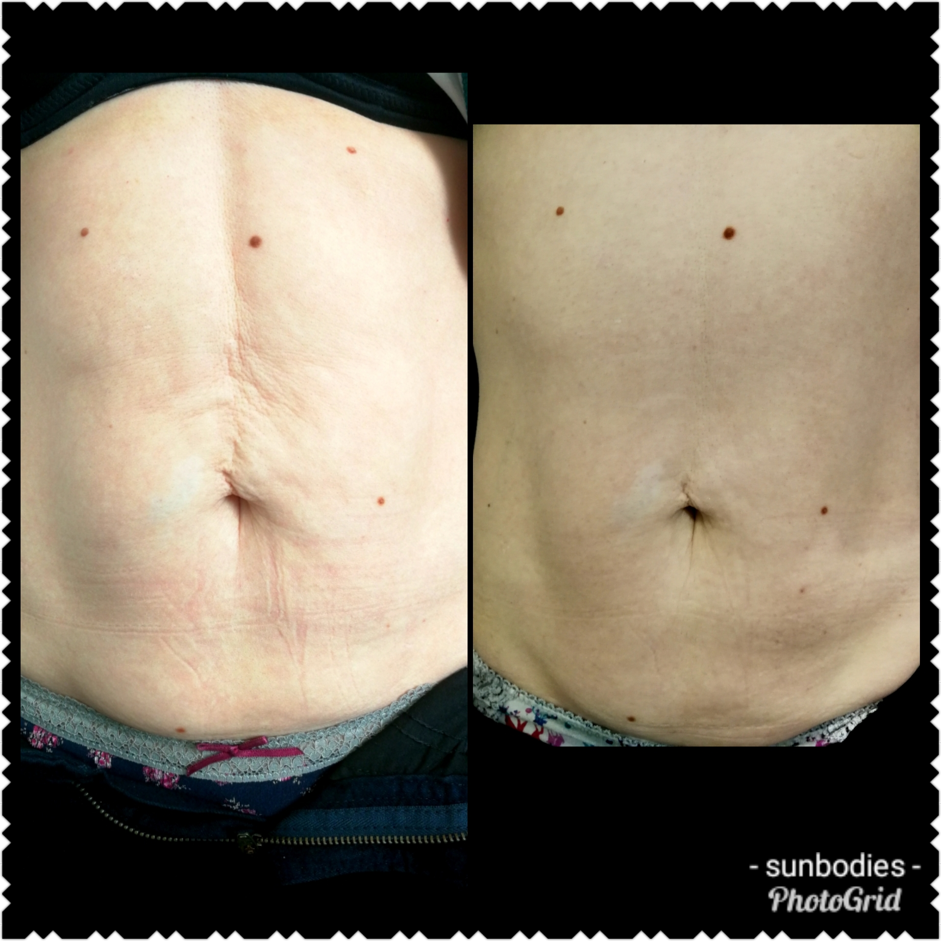 RF Body Skin Tightening/Fat melting