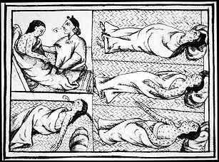 smallpox.jpg