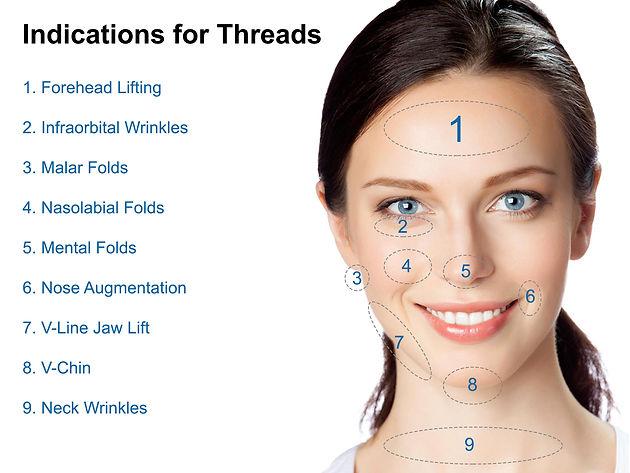 Threadlift – Non-Invasive Treatment To Tighten Skin And Reduce