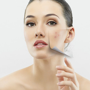 Excellent Chemical Peel Singapore