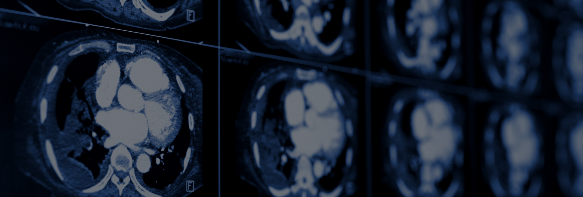 Experienced Radiologists