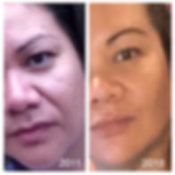 Jowls Voluma non surgical facelift mid face fillers cheek fillers liquid facelift v-shape