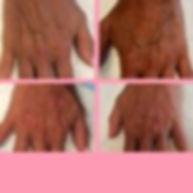 hand rejuvenation aging hands Radiesse Restylane Lyft