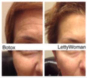 reduced wrinkles Lettywoman.com
