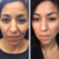 Voluma non surgical facelift mid face fillers cheek fillers liquid facelift v-shape