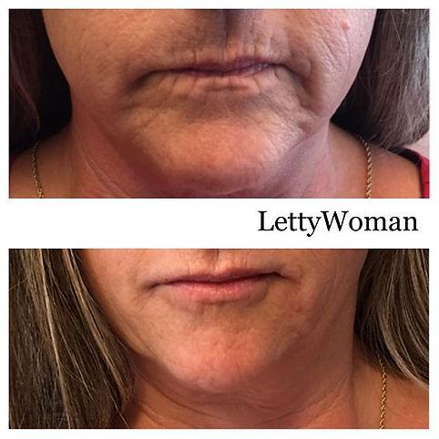 Enhanced lips Lettywoman.com