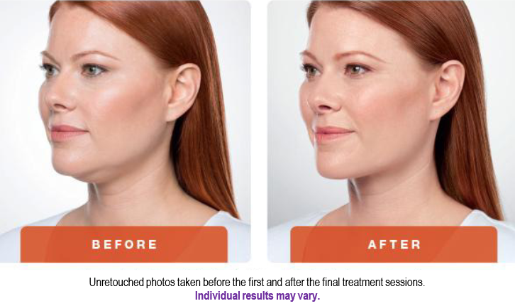 Kybella_BeforeAfter