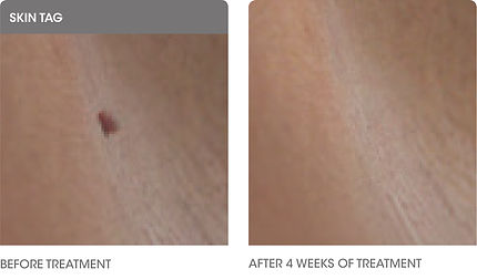 Skin Tag Before & After.jpg