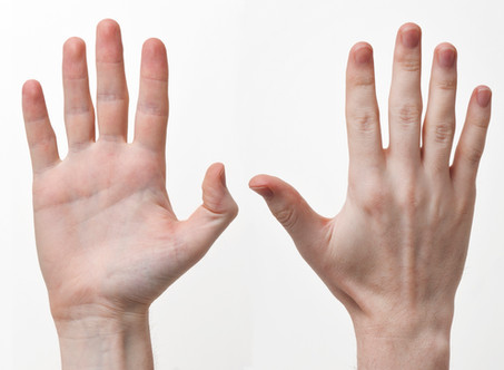 Carpal Tunnel, or Something Else? Causes of Numbness and Tingling in Your Hands.