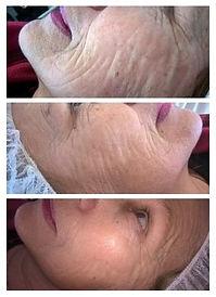 visage avant/après mi-cure et fin de cure