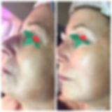 visage avant/après cure