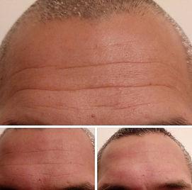 front avant/après mi-cure