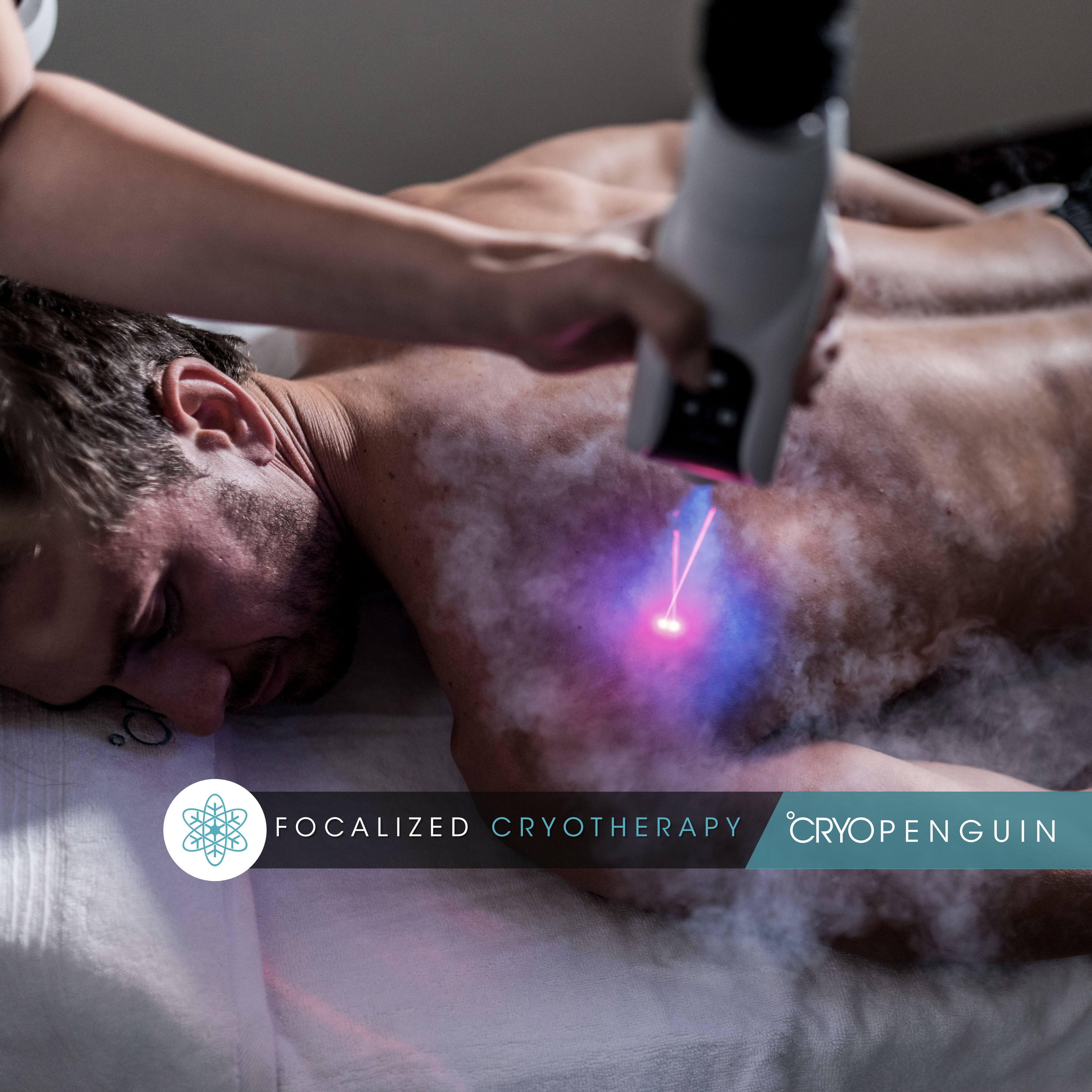 Focalized Cryotherapy 2