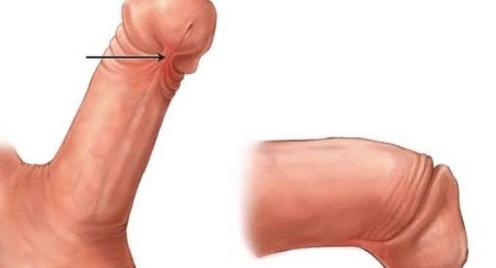 Freio curto e curvatura peniana
