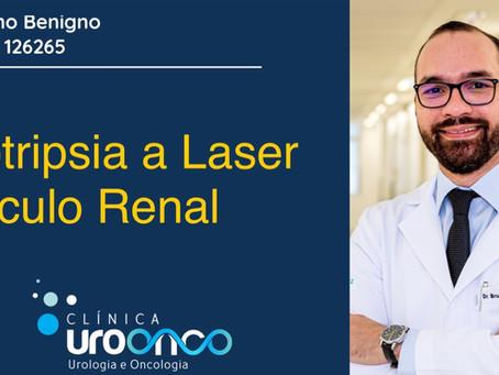 Litotripsia a laser para tratamento do cálculo renal