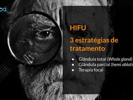 Ultrassom Focalizado de Alta Intensidade - HIFU - no tratamento do câncer de próstata