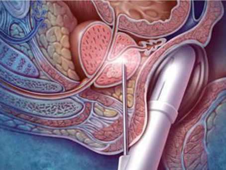 Posso dirigir depois de realizar uma biopsia da próstata?