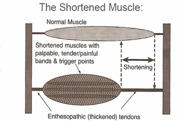 Shorten Muscles.png