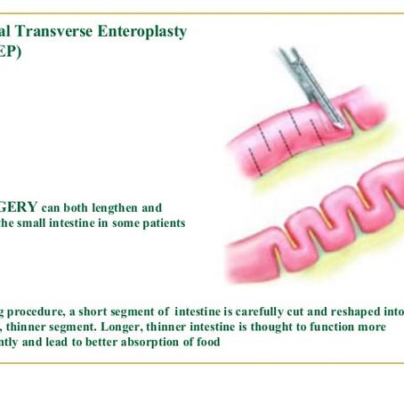 Serial Transverse Enteroplasty Procedure (STEP)