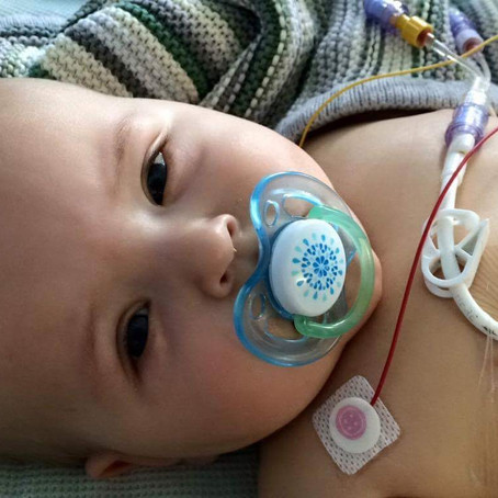 Three Years today Charlie had his 1st Central Line Insertion!