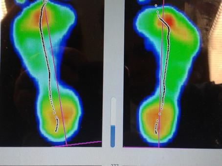 Anamnesis del deportista ¿Qué zapatilla necesito para mi pie?