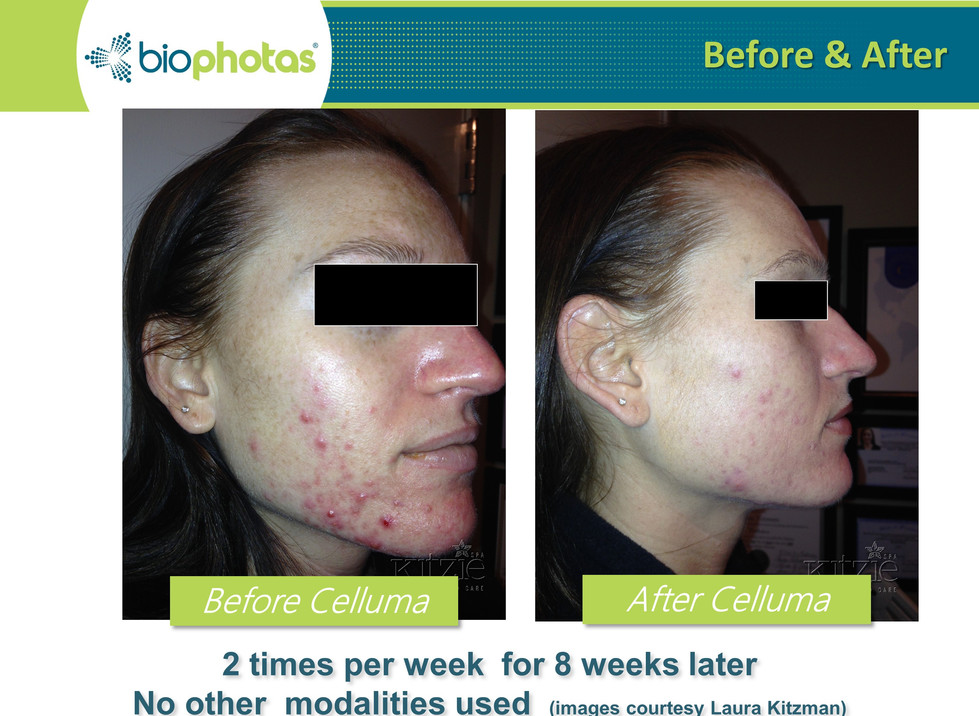 Before-After (6).JPG
