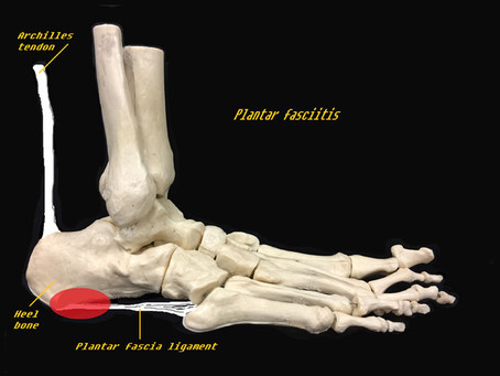 It works! Results For Plantar Fasciitis Treatment using Shockwave Therapies