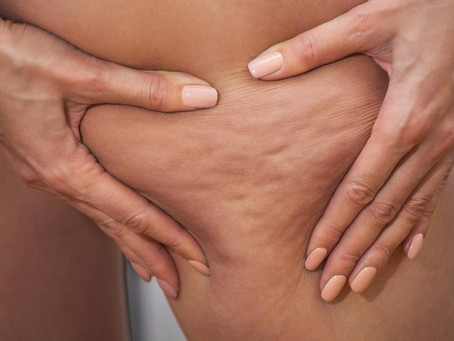 Cellulite - New and Updated Summary