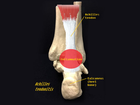 Achilles Tendonitis - New and Updated Summary