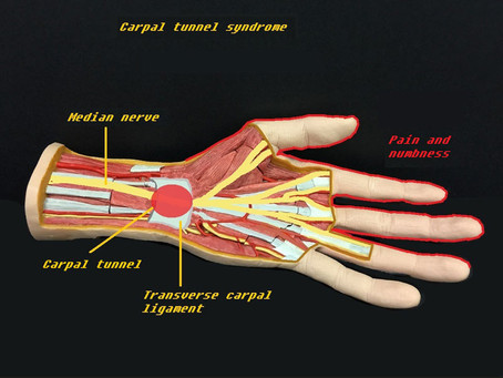 Carpal Tunnel Syndrome - New and Updated Summary
