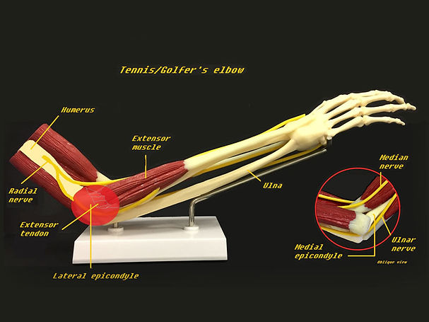 Tennis-Elbow-Golfers-Elbow.jpg
