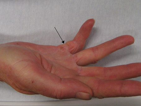 Research: Case of recurrent Dupuytren's contracture successfully treated with shockwave therapy