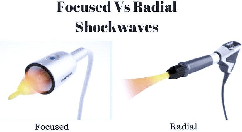 radial-vs-focused_edited.jpg