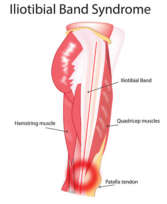 Iliotibial_band_syndrome_image1.png