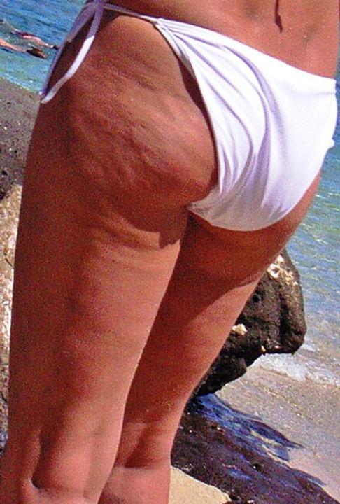 Cellulite1.jpg