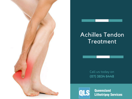 Achilles tendonitis fair game for shockwave therapy