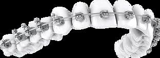pngkey.com-braces-png-2148106.png