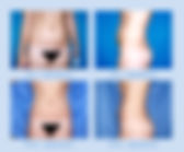 liposuccion.jpg