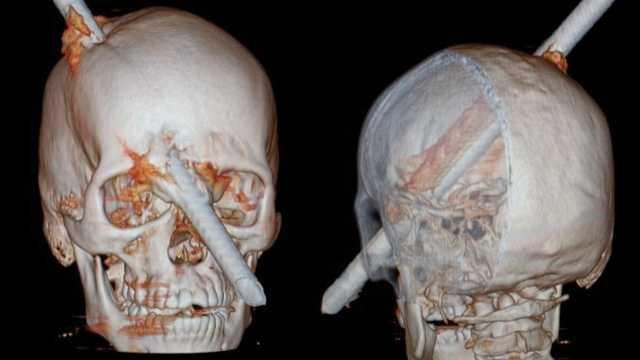 perfuracao-de-cranio