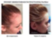 рост и укрепление волос, залысина, выпадение волос, в домашних условиях