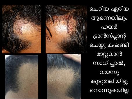 Hair transplantation at its best in Kochi Cochin, Kerala, India.