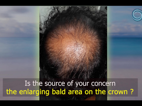 Enlarging bald crown area is worrisome. Meet plastic surgeons @ Eterno to know how to treat it.