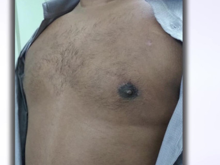 Gynecomastia/Enlarged male breasts need not worrying anymore. Visit Eterno to know more.