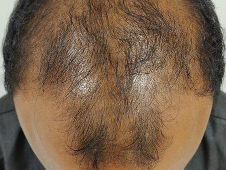 All the latest techniques to treat hair loss- Medical to hair transplantation @ Eterno, Kochi