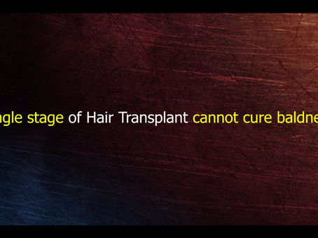 For the most Natural appearing hair transplant results, visit Eterno.