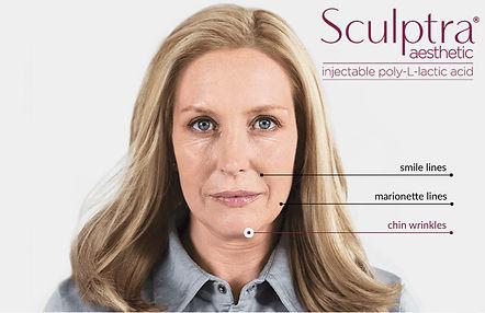 sculptra-treatment-areas.jpeg