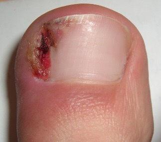ingrown toenail