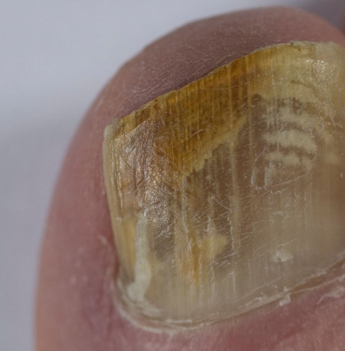 fungal or thickened nails