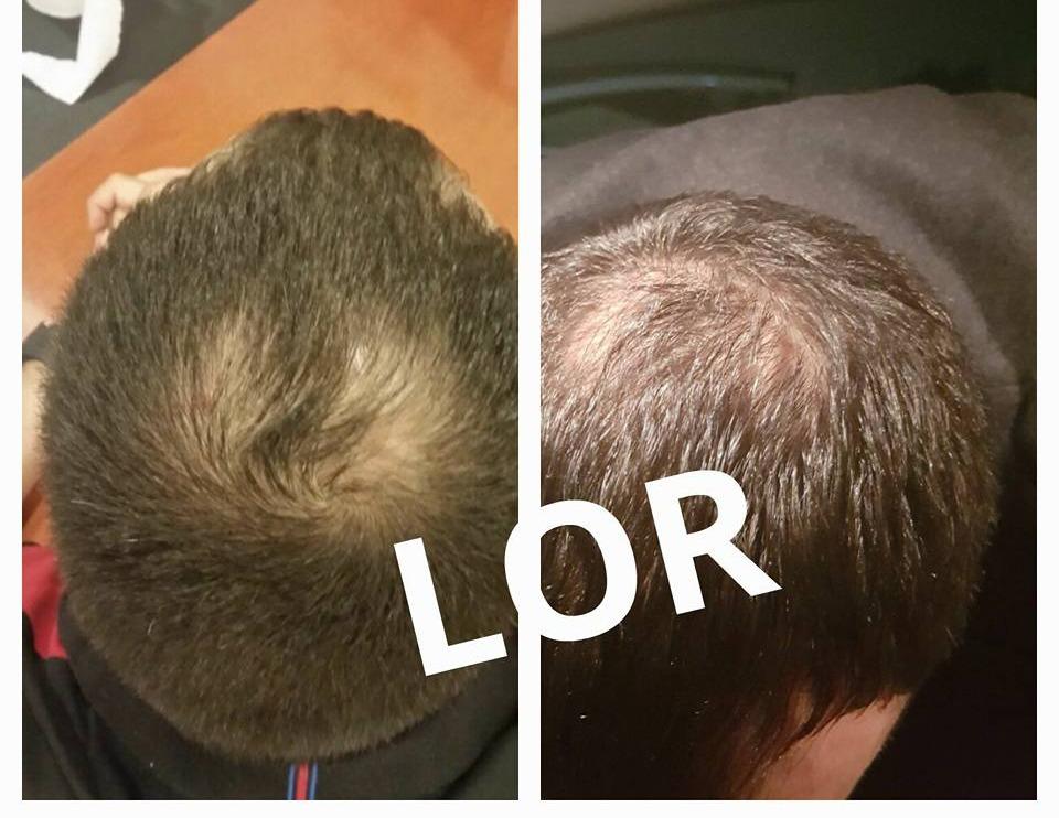 לפני ואחרי טיפול לור