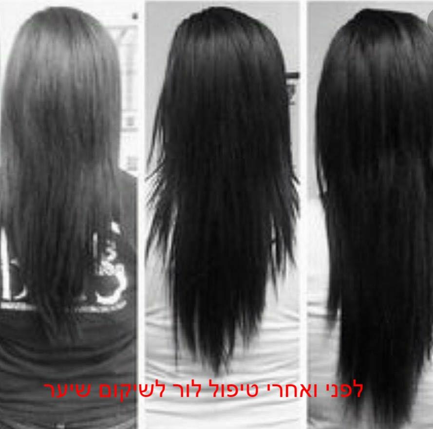 תמונות לפני ואחרי טיפול לור